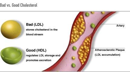 ¡Me ha dicho el médico que tengo colesterol…!